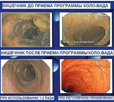 очищение желудка и кишечника геркулесом