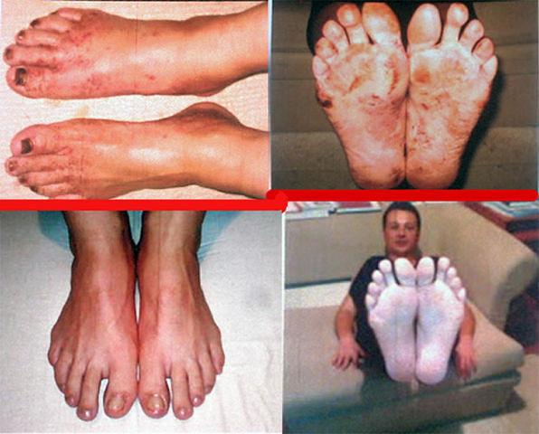 Народные методы лечения ног при сахарном диабете